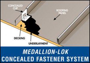 Medallion-Lok Concealed Fastener System